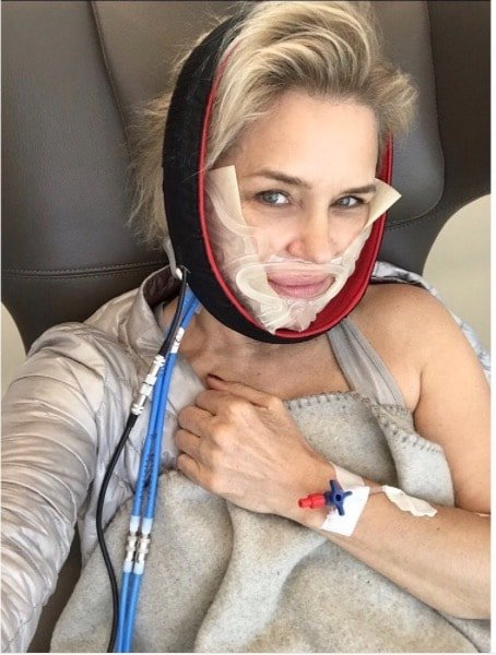 Yolanda Hadid Gets Dental Surgery In Lyme Fight